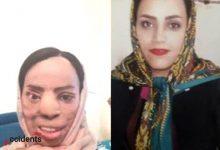 حادثه اسید پاشی زن برادر به خواهر شوهر - اخبار حوادث - سایت حوادث - اخبار - خبرگزاری