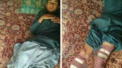 سایت حوادث - حادثه آتش سوزی در زهک - اخبار حوادث - حادثه